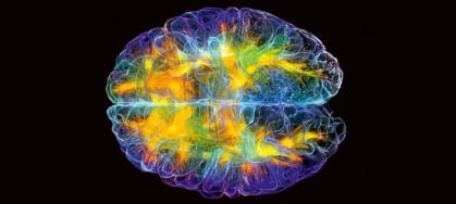 Cervello1-679x305